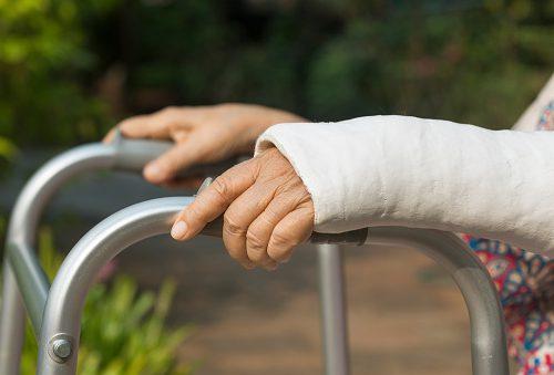 advances in bone fracture