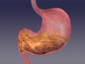 What causes antral gastritis and how to treat it bel marra health what causes antral gastritis ccuart Choice Image
