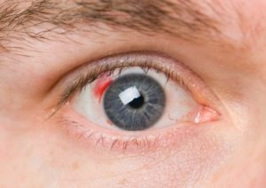 causes of blood clot in eye