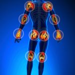 How to deal with arthritis pain on a daily basis