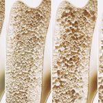 Osteoporosis fractures more common in women but deadlier in men