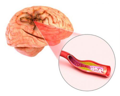 Thrombotic stroke,