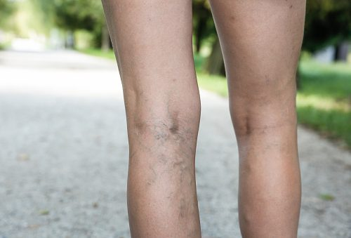 How Do I Get Rid Of Spider Veins Naturally
