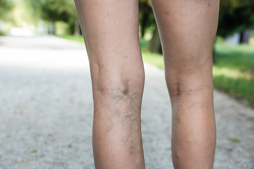 varicose veins natural treatments