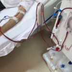 End-stage-renal-disease-ESRD-or-stage-5-kidney-disease-Causes-symptoms-and-treatment
