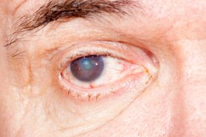 cataract-risk-increases-with-chronic-sunlight-exposure