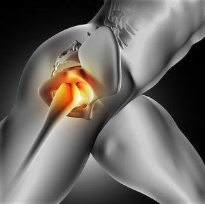 Iliac crest pain