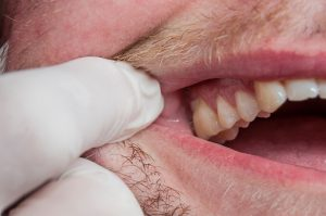 marijuana use linked to gum disease