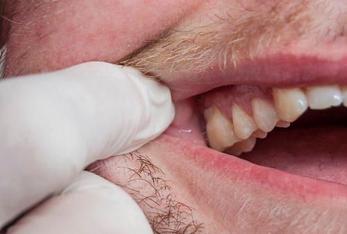 marijuana use linked to gum disease