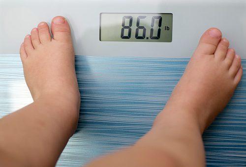 obese stroke