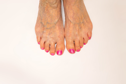 poor circulation in feet causes symptoms and treatment