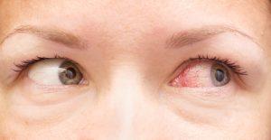 red veins in eyes