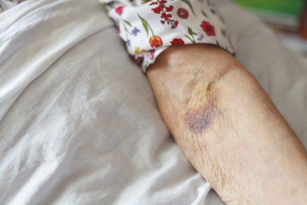 What is senile purpura? Causes, symptoms, diagnosis, and treatment tips