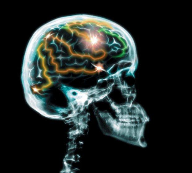 How Sleep Affects Your Brain