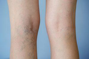 Varicose veins update