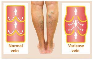 varicose veins treatment