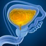 bladder-polyps