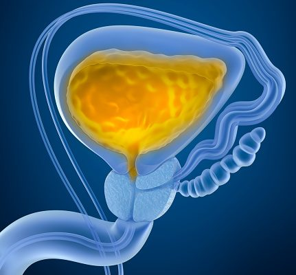 bladder polyps