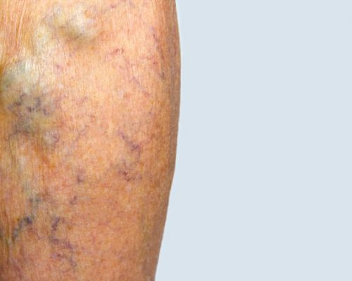 How to know if you should treat your varicose veins
