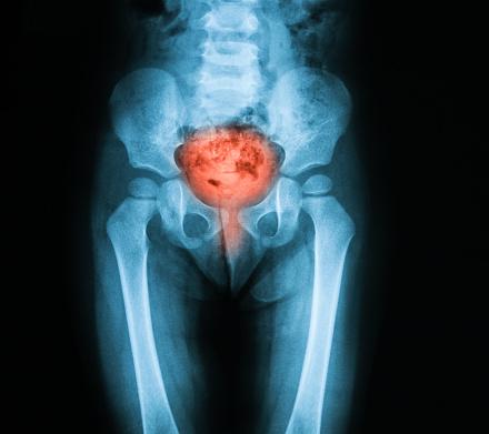 enlarged bladder