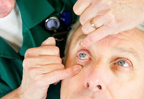 eye exam circulation
