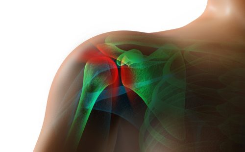 shoulder crepitus