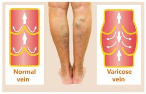 http://www.belmarrahealth.com/exercises-varicose-veins-yoga-poses-exercises-varicose-veins-treatment/