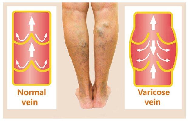 can yoga help varicose veins