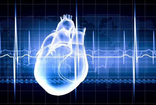anteroseptal infarct