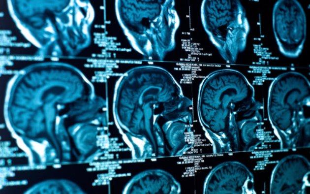Detecting cancer metastasis