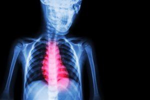 ischemic cardiomyopathy