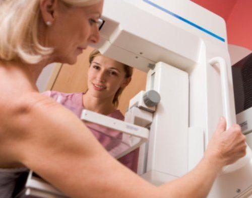 Hyperthyroidism increases risk of breast cancer