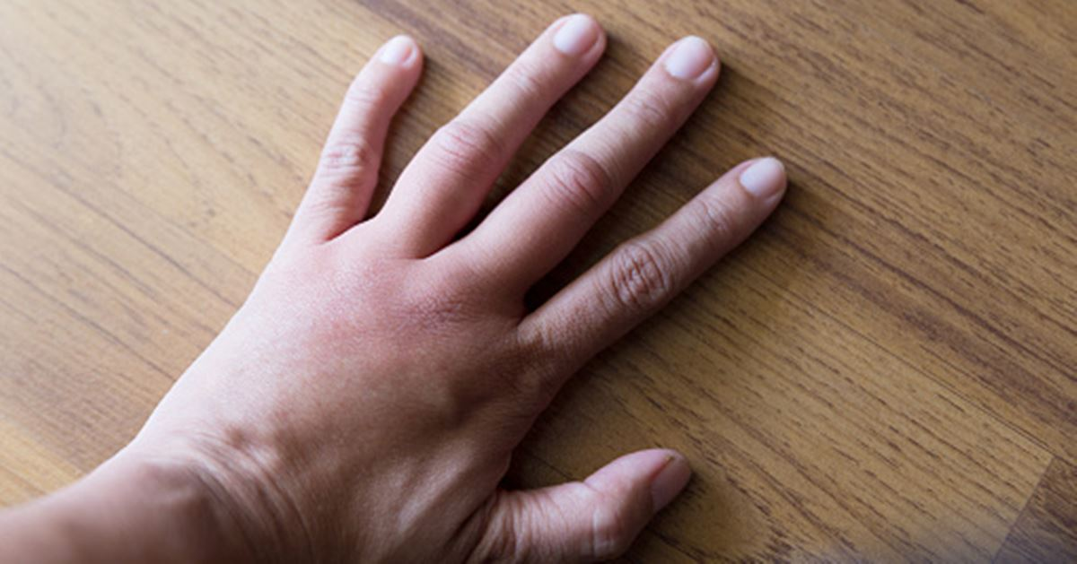 what causes swollen knuckles and how to reduce swelling
