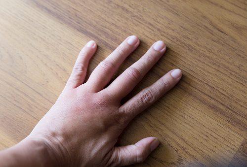 Swollen throbbing thumb