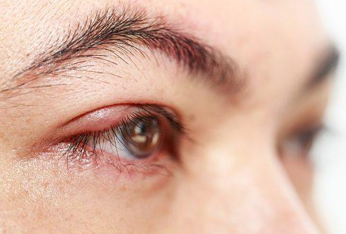yellow eye spots