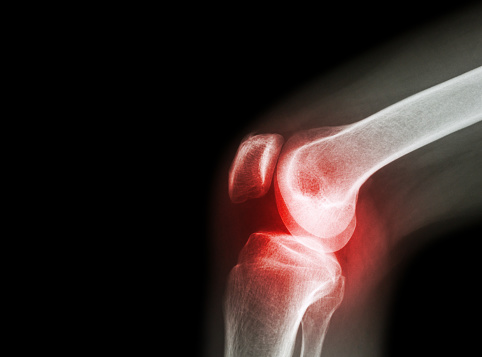 What Causes Septic Infectious Arthritis Diagnosis Treatment And Prevention