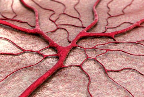 arteriovenus