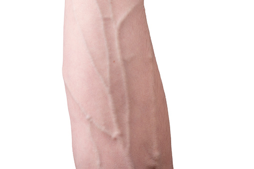 Veins on an arm