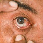 Eyeball spots Causes
