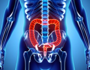 Colonic Inertia Diet Causes Symptoms And Treatment