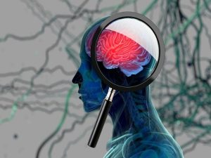 improve cognition in Parkinson's