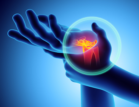 migratory arthritis
