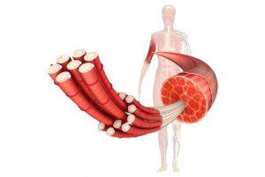myofibrillar myopathy