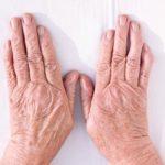 Rheumatoid arthritis and skin problems: Causes