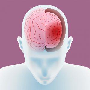 cerebral atrophy