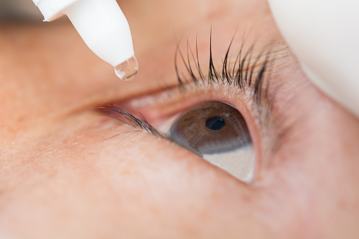 Steroid eye drops for chemosis golden dragon astoria delivery