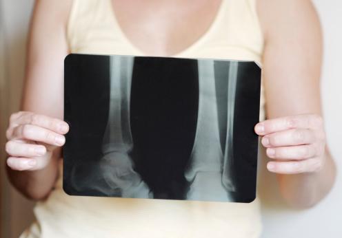 eblast osteoperosis