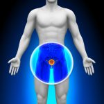 factors-putting-you-at-risk-for-prostate-cancer