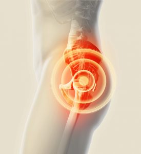 pain above the left hip