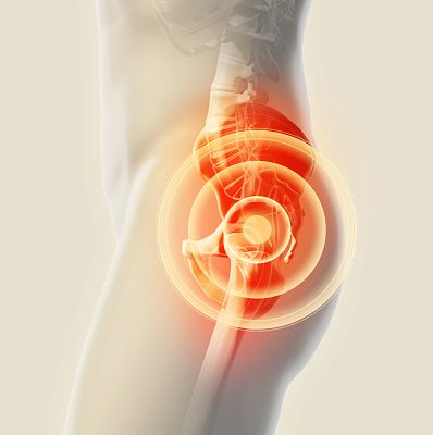 Why there is Pain Above Left Hip? 16 Causes of Left Hip Pain